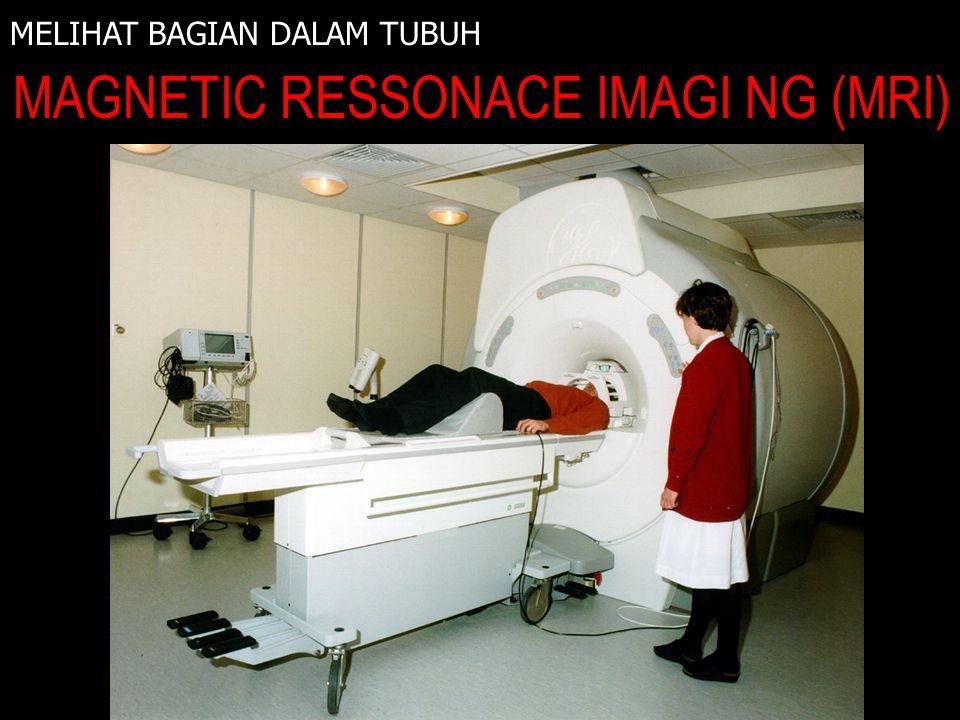 MELIHAT BAGIAN DALAM TUBUH MAGNETIC RESSONACE IMAGI NG (MRI) INFRA MERAH