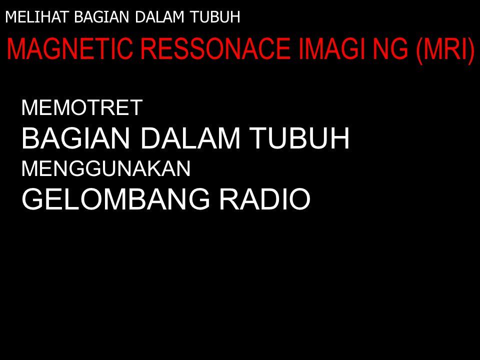 MELIHAT BAGIAN DALAM TUBUH MAGNETIC RESSONACE IMAGI NG (MRI) INFRA MERAH MEMOTRET BAGIAN DALAM TUBUH MENGGUNAKAN GELOMBANG RADIO