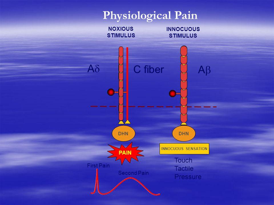 DHN PAIN INNOCUOUS SENSATION NOXIOUS STIMULUS INNOCUOUS STIMULUS DHN Touch Tactile Pressure Physiological Pain AA C fiber AA First Pain Second Pai