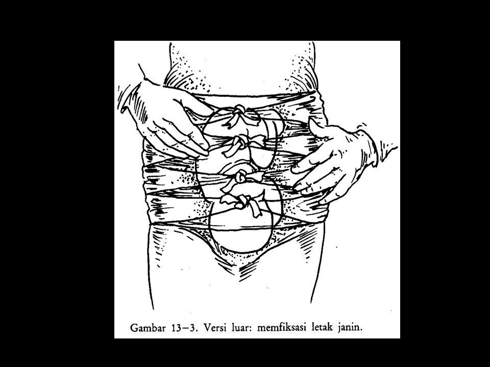 LETAK LINTANG Keadaan janin melintang dalam uterus.