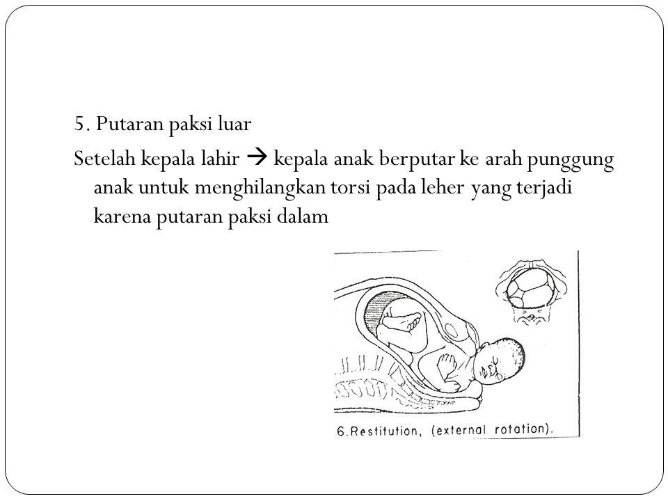 5. Putaran paksi luar Setelah kepala lahir  kepala anak berputar ke arah punggung anak untuk menghilangkan torsi pada leher yang terjadi karena putar