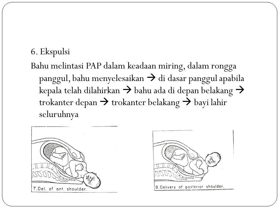 6. Ekspulsi Bahu melintasi PAP dalam keadaan miring, dalam rongga panggul, bahu menyelesaikan  di dasar panggul apabila kepala telah dilahirkan  bah