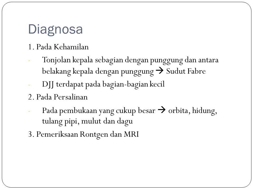 Diagnosa 1. Pada Kehamilan - Tonjolan kepala sebagian dengan punggung dan antara belakang kepala dengan punggung  Sudut Fabre - DJJ terdapat pada bag