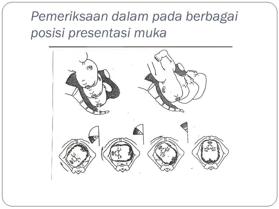 Pemeriksaan dalam pada berbagai posisi presentasi muka