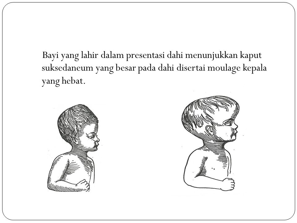 Bayi yang lahir dalam presentasi dahi menunjukkan kaput suksedaneum yang besar pada dahi disertai moulage kepala yang hebat.