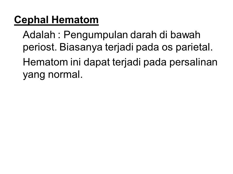 Cephal Hematom Adalah : Pengumpulan darah di bawah periost. Biasanya terjadi pada os parietal. Hematom ini dapat terjadi pada persalinan yang normal.