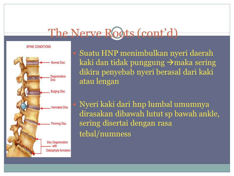The Nerve Roots (cont'd) Suatu HNP menimbulkan nyeri daerah kaki dan tidak punggung  maka sering dikira penyebab nyeri berasal dari kaki atau lengan Nyeri kaki dari hnp lumbal umumnya dirasakan dibawah lutut sp bawah ankle, sering disertai dengan rasa tebal/numness
