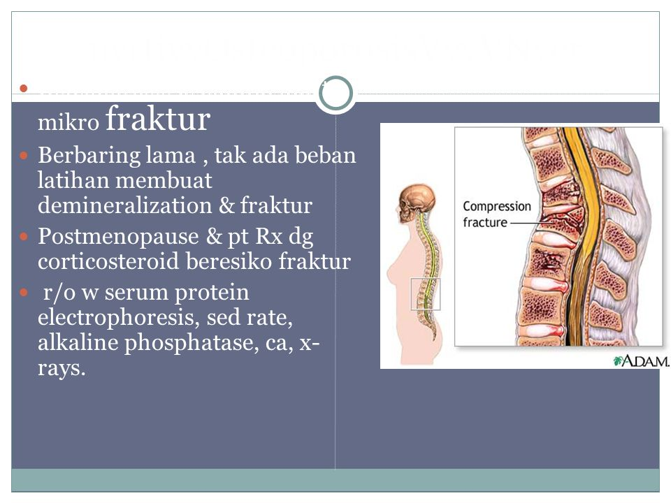 nyrtivvOsteoporosisVvvVNyer Osteoporosis is painful due to mikro fraktur Berbaring lama, tak ada beban latihan membuat demineralization & fraktur Post