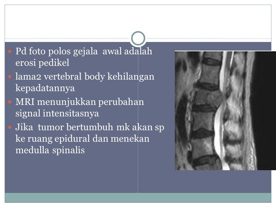 Vertebral metastases Pd foto polos gejala awal adalah erosi pedikel lama2 vertebral body kehilangan kepadatannya MRI menunjukkan perubahan signal intensitasnya Jika tumor bertumbuh mk akan sp ke ruang epidural dan menekan medulla spinalis