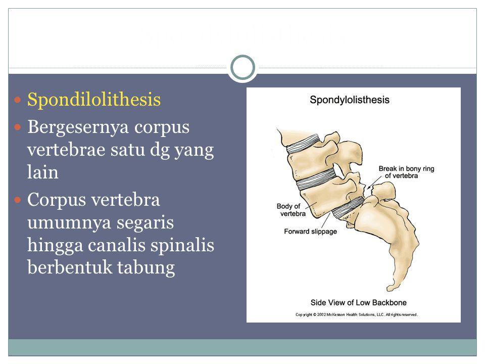 Spondylolisthesis Spondilolithesis Bergesernya corpus vertebrae satu dg yang lain Corpus vertebra umumnya segaris hingga canalis spinalis berbentuk ta