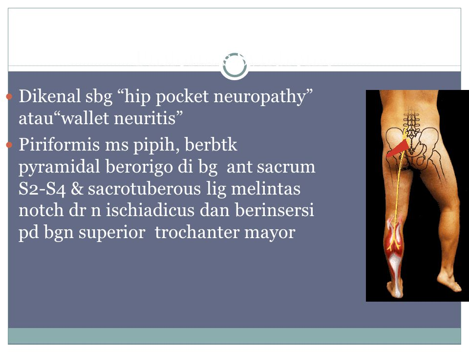Piriformis Syndrome Dikenal sbg hip pocket neuropathy atau wallet neuritis Piriformis ms pipih, berbtk pyramidal berorigo di bg ant sacrum S2-S4 & sacrotuberous lig melintas notch dr n ischiadicus dan berinsersi pd bgn superior trochanter mayor