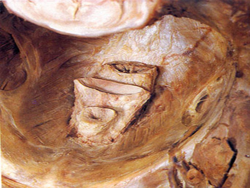 LEVATOR ANI  Struktur mayor dari dasar panggul  Ditembus hiatus urogenitalis  Ttd:  Pubococcygeus  Iliococygeus  Puborectalis  Coccygeus