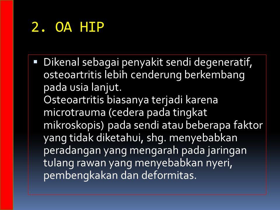 2. OA HIP  Dikenal sebagai penyakit sendi degeneratif, osteoartritis lebih cenderung berkembang pada usia lanjut. Osteoartritis biasanya terjadi kare