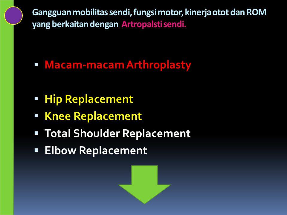 Gangguan mobilitas sendi, fungsi motor, kinerja otot dan ROM yang berkaitan dengan Artropalsti sendi.  Macam-macam Arthroplasty  Hip Replacement  K