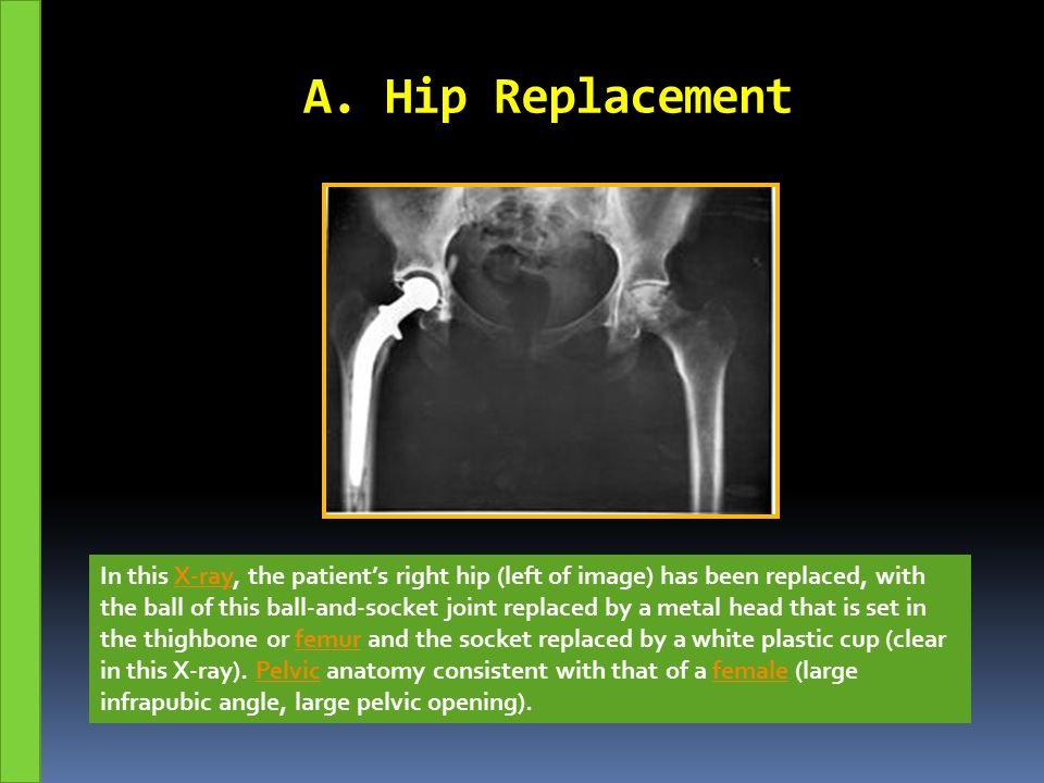 TOTAL KNEE REPLACEMENT (TKR) POST-OPERATIVE REHABILITATION PROTOCOL  PRE-OPERATIVE PHYSICAL THERAPY  The patient is seen for a pre-operative physical therapy session which includes:  review of the TKR protocol.