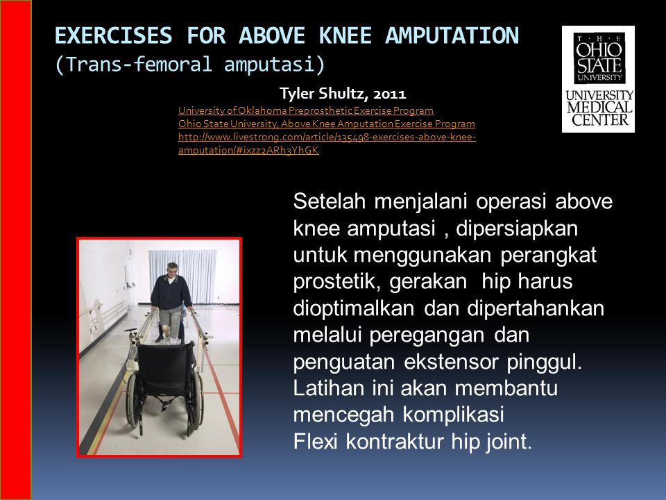 EXERCISES FOR ABOVE KNEE AMPUTATION (Trans-femoral amputasi) Tyler Shultz, 2011 University of Oklahoma Preprosthetic Exercise Program Ohio State Unive