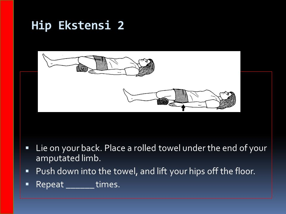 Hip Ekstensi 2  Lie on your back. Place a rolled towel under the end of your amputated limb.  Push down into the towel, and lift your hips off the f
