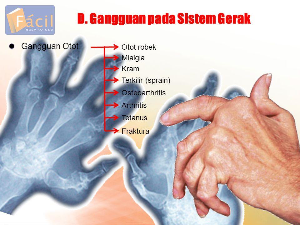 Gangguan Otot Otot robek D. Gangguan pada Sistem Gerak Mialgia Kram Terkilir (sprain) Osteoarthritis Arthritis Tetanus Fraktura