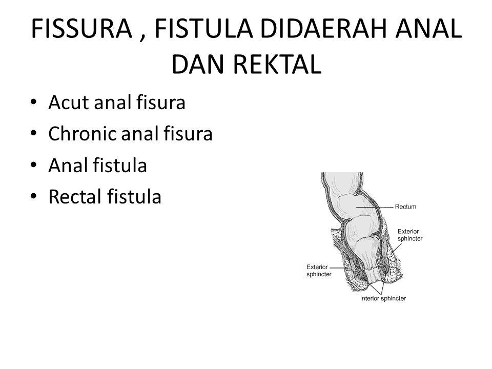 FISSURA, FISTULA DIDAERAH ANAL DAN REKTAL Acut anal fisura Chronic anal fisura Anal fistula Rectal fistula