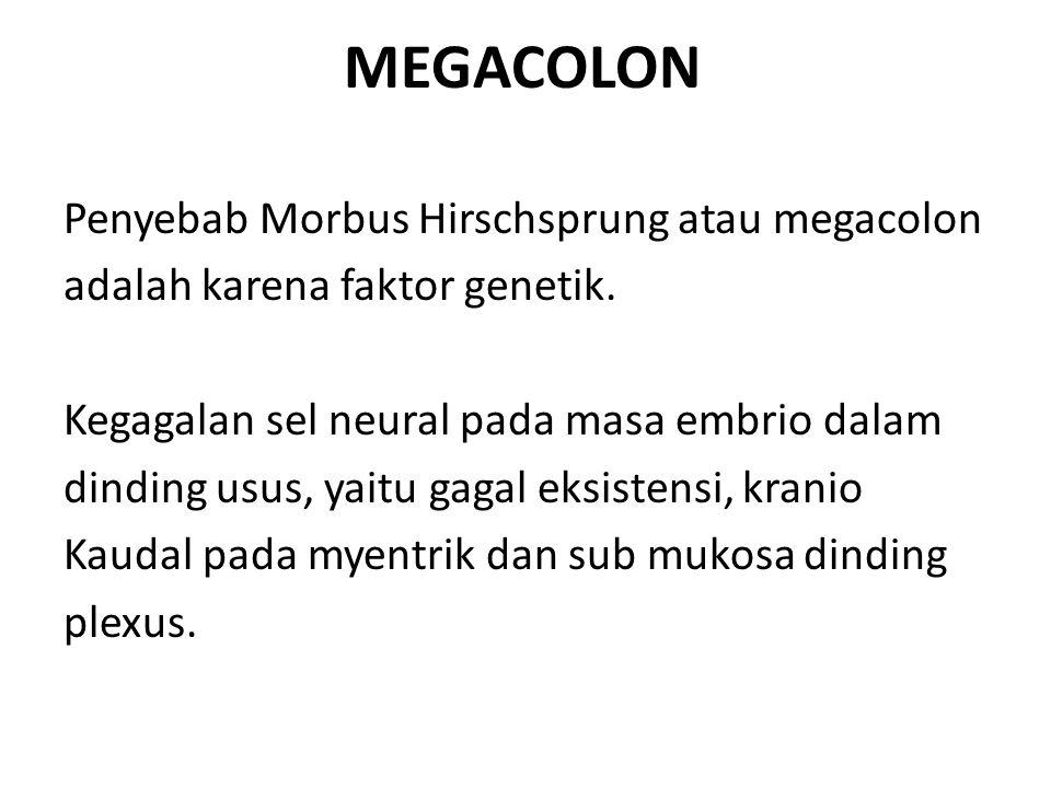MEGACOLON Penyebab Morbus Hirschsprung atau megacolon adalah karena faktor genetik. Kegagalan sel neural pada masa embrio dalam dinding usus, yaitu ga