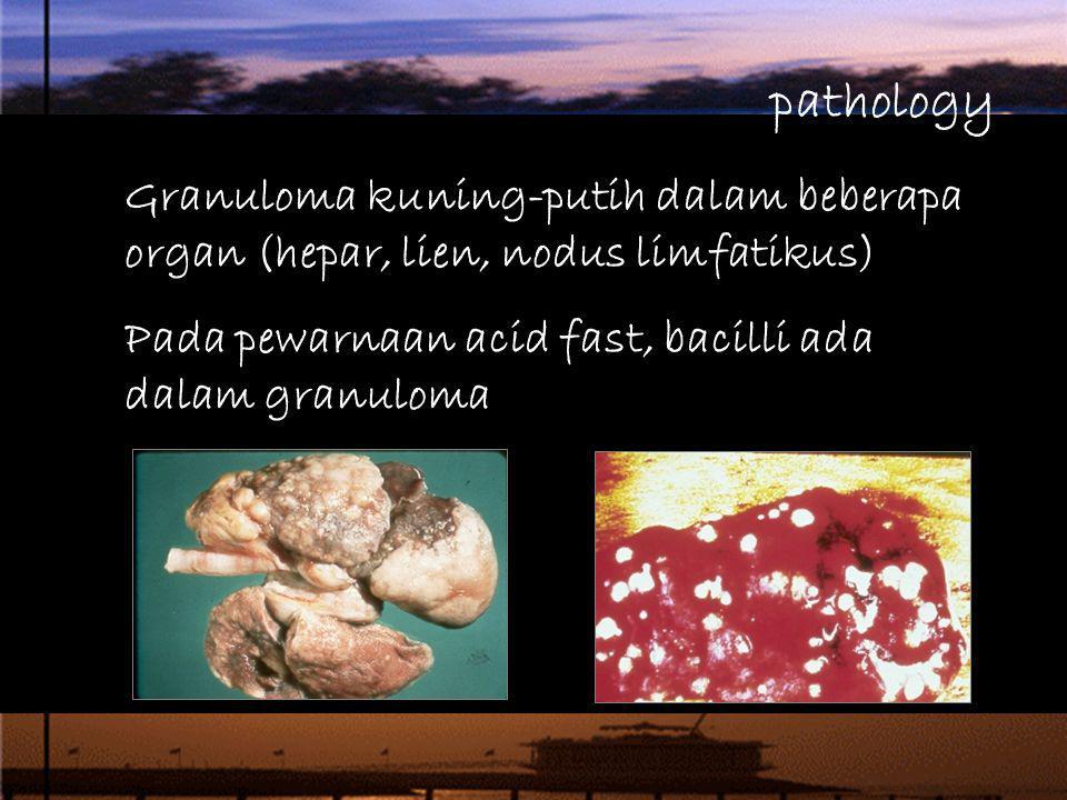pathology Granuloma kuning-putih dalam beberapa organ (hepar, lien, nodus limfatikus) Pada pewarnaan acid fast, bacilli ada dalam granuloma