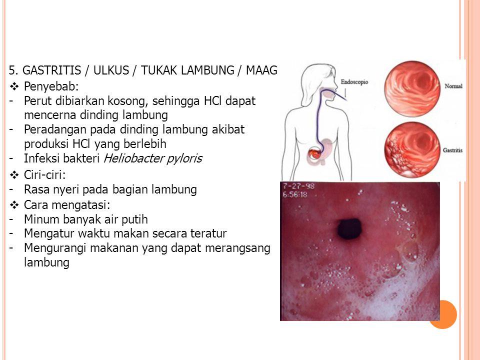 5. GASTRITIS / ULKUS / TUKAK LAMBUNG / MAAG  Penyebab: -Perut dibiarkan kosong, sehingga HCl dapat mencerna dinding lambung -Peradangan pada dinding