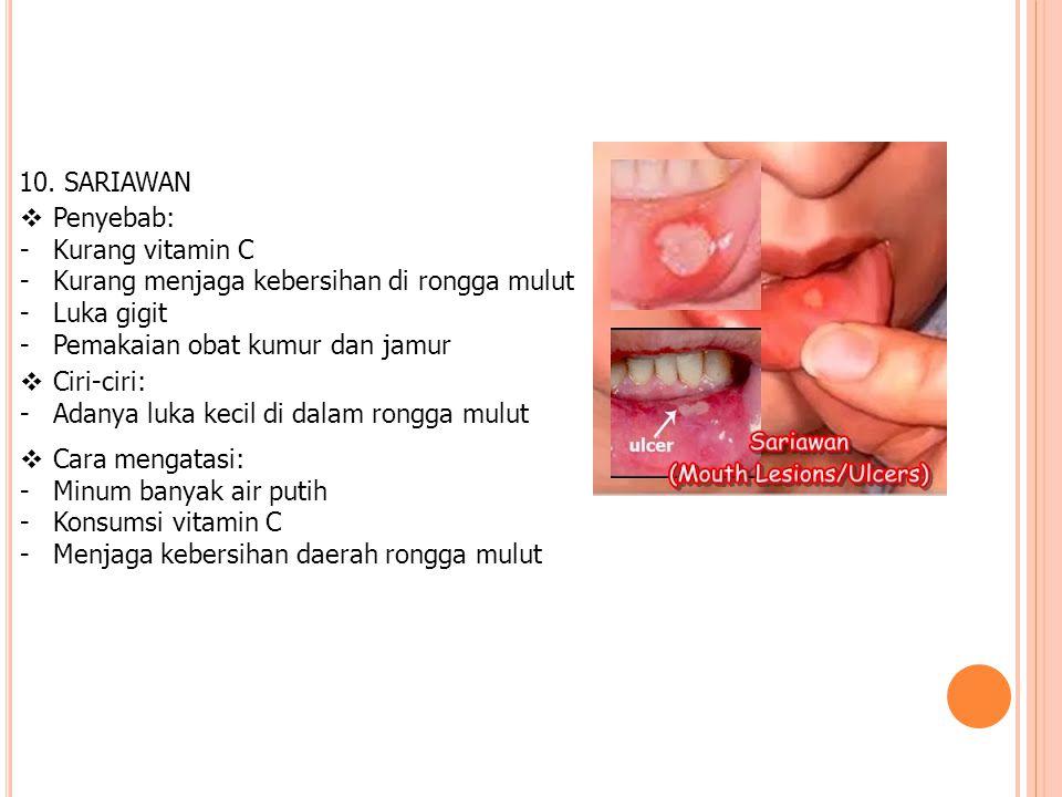 10. SARIAWAN  Penyebab: -Kurang vitamin C -Kurang menjaga kebersihan di rongga mulut -Luka gigit -Pemakaian obat kumur dan jamur  Ciri-ciri: -Adanya