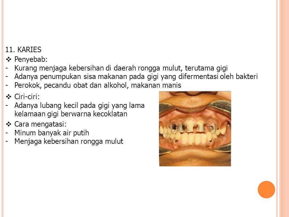 11. KARIES  Penyebab: -Kurang menjaga kebersihan di daerah rongga mulut, terutama gigi -Adanya penumpukan sisa makanan pada gigi yang difermentasi ol