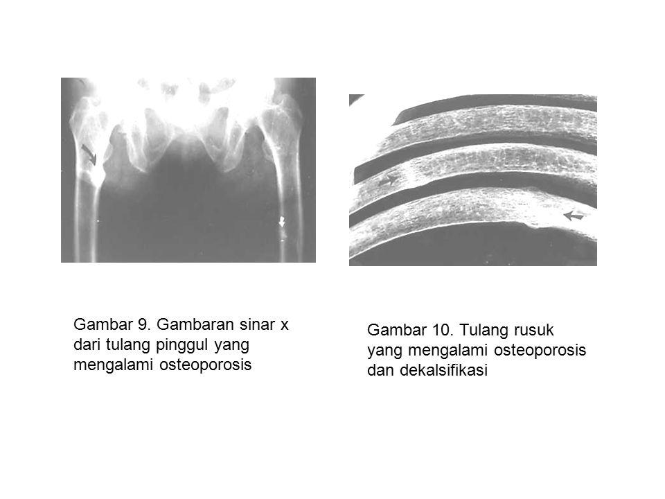 Gambar 9.Gambaran sinar x dari tulang pinggul yang mengalami osteoporosis Gambar 10.