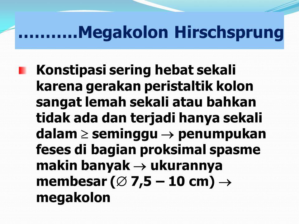………..Megakolon Hirschsprung Konstipasi sering hebat sekali karena gerakan peristaltik kolon sangat lemah sekali atau bahkan tidak ada dan terjadi hany