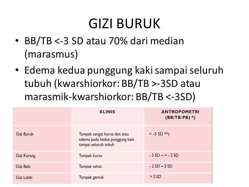 GIZI BURUK BB/TB <-3 SD atau 70% dari median (marasmus) Edema kedua punggung kaki sampai seluruh tubuh (kwarshiorkor: BB/TB >-3SD atau marasmik-kwarsh