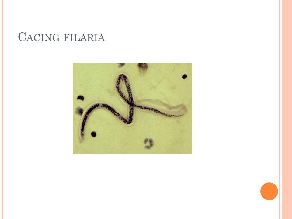 C ACING FILARIA