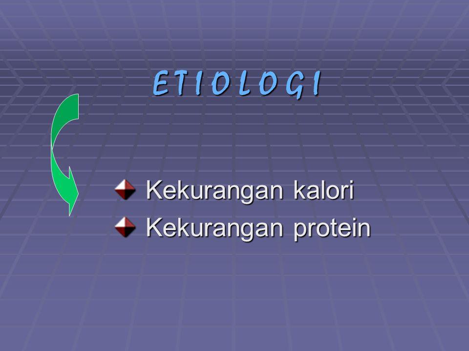 E T I O L O G I Kekurangan kalori Kekurangan protein