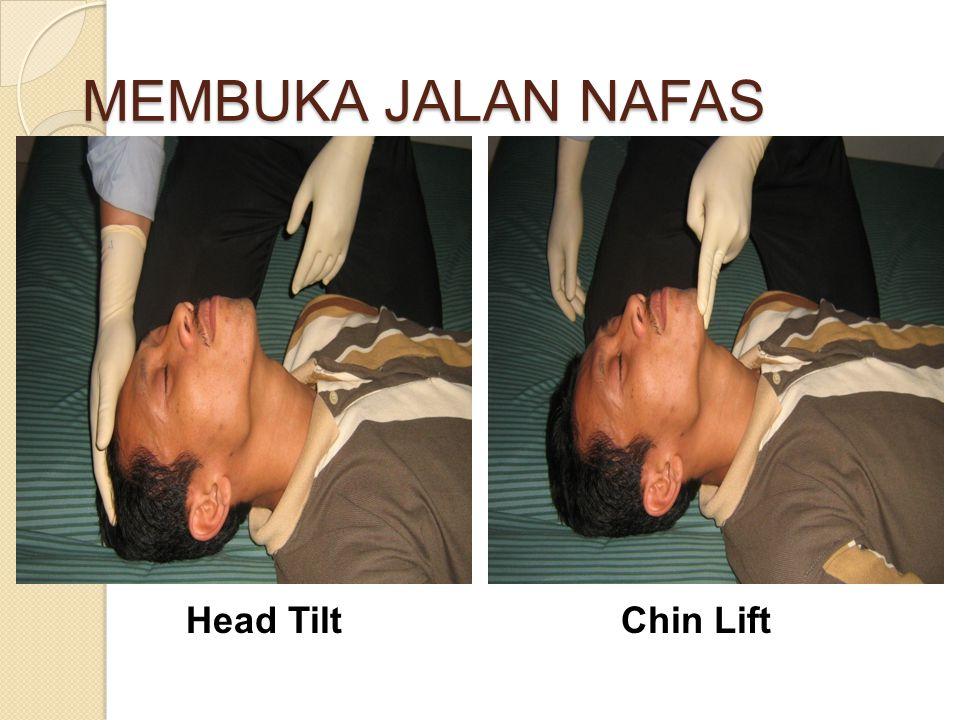 MEMBUKA JALAN NAFAS Head TiltChin Lift