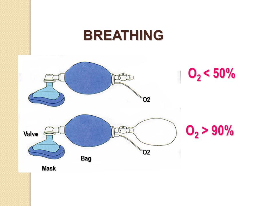 O 2 < 50% O 2 > 90% BREATHING Bag Valve Mask O2 O2