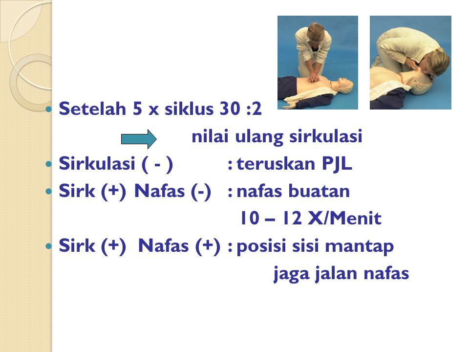 Setelah 5 x siklus 30 :2 nilai ulang sirkulasi Sirkulasi ( - ) : teruskan PJL Sirk (+)Nafas (-): nafas buatan 10 – 12 X/Menit Sirk (+) Nafas (+): posisi sisi mantap jaga jalan nafas