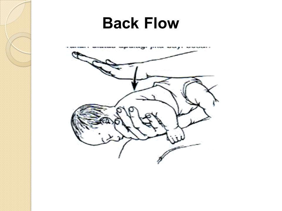 Back Flow