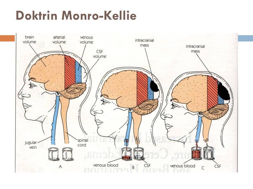 Doktrin Monro-Kellie