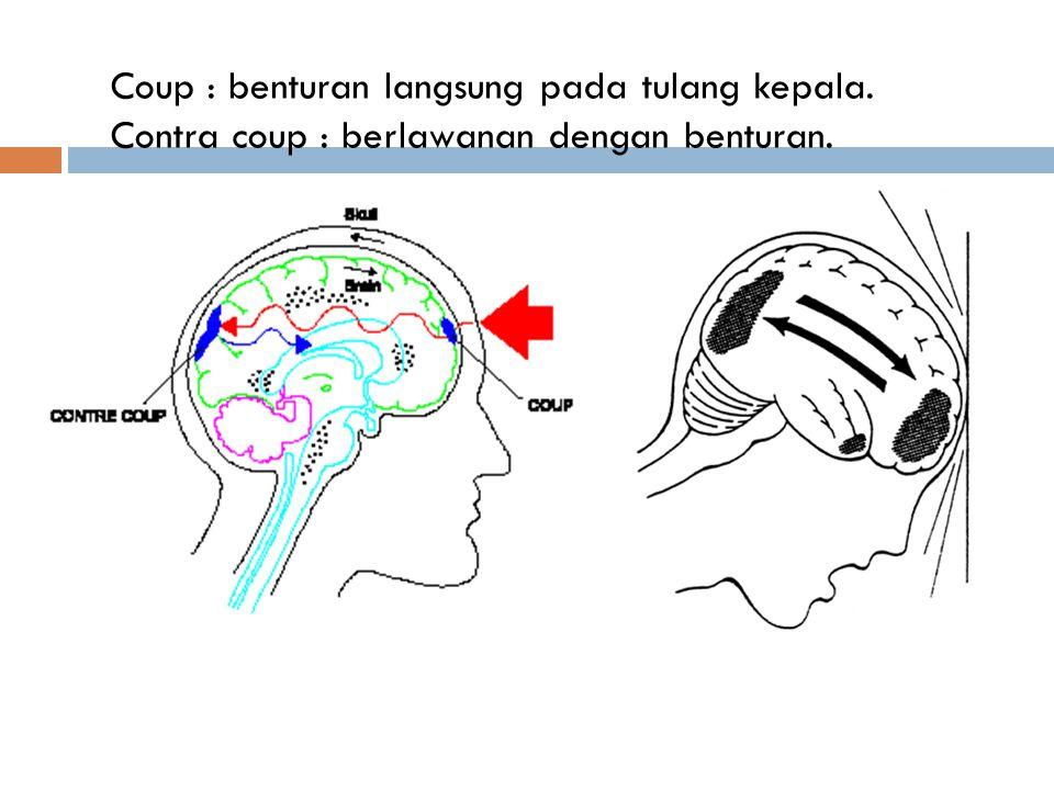 Coup : benturan langsung pada tulang kepala. Contra coup : berlawanan dengan benturan.