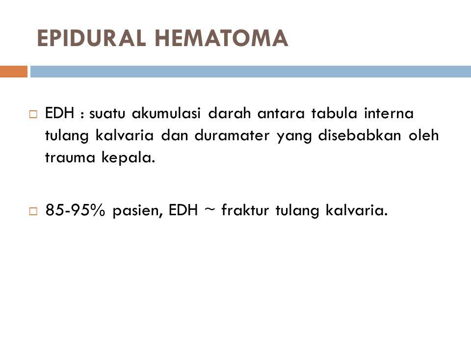 EPIDURAL HEMATOMA  EDH : suatu akumulasi darah antara tabula interna tulang kalvaria dan duramater yang disebabkan oleh trauma kepala.  85-95% pasie