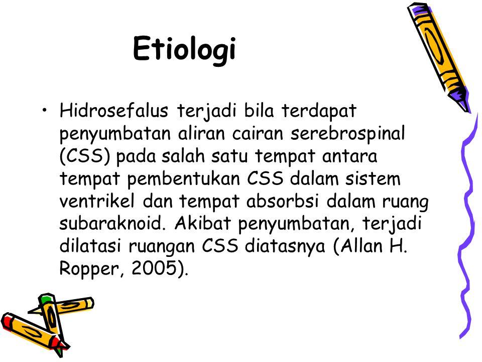 Etiologi Hidrosefalus terjadi bila terdapat penyumbatan aliran cairan serebrospinal (CSS) pada salah satu tempat antara tempat pembentukan CSS dalam s