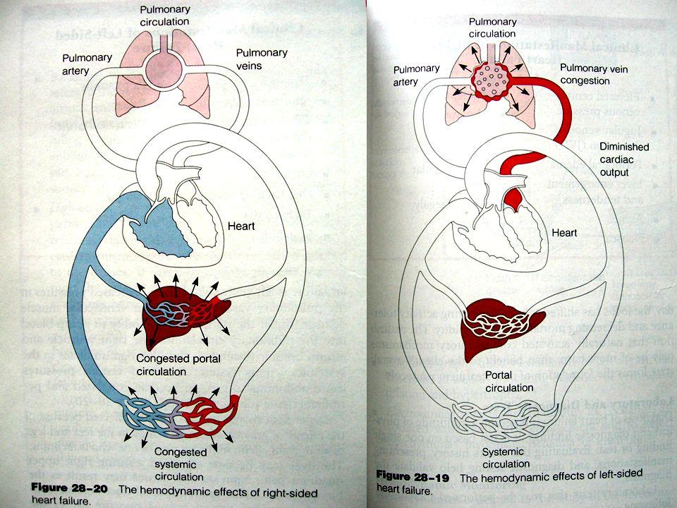 KONDISI KARDIOVASKU LER DISFUNGSI MYOKARDIAL KARDIAK OUTPUT MENURUN Volume darah arateri menurun.Fatigue, confution, disfungsi renal.