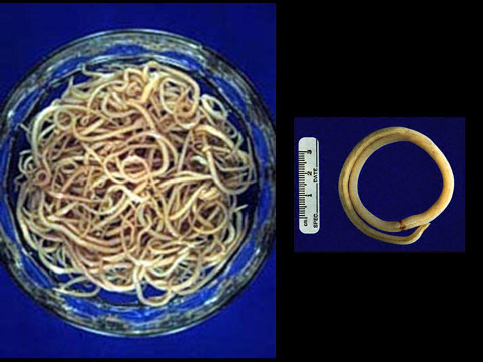 Contoh Nemathelminthes Ascaris lumbricroides, cacing perut pada manusia Ascaris megalocephala, cacing perut pada kuda Ascaris suilae, cacing perut pada babi Ancylostoma duodenale, cacing tambang Necator americanus, cacing tambang di Amerika tropis Oxyuris/Enterobius vermicularis, cacing kremi Trichinella spirallis, cacing otot pada manusia Trichuris, cacing cambuk Wuchereria/Filaria bancrofti, penyebab kaki gajah Strongyloides sp, infeksi melalui luka Loa sp, cacing mata Onchocerca sp, cacing pembuta Heterodera radicicota, cacing akar