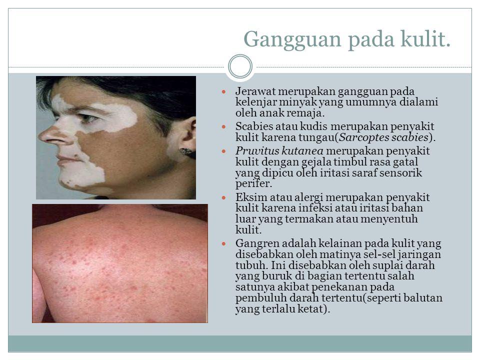 Gangguan pada kulit. Jerawat merupakan gangguan pada kelenjar minyak yang umumnya dialami oleh anak remaja. Scabies atau kudis merupakan penyakit kuli