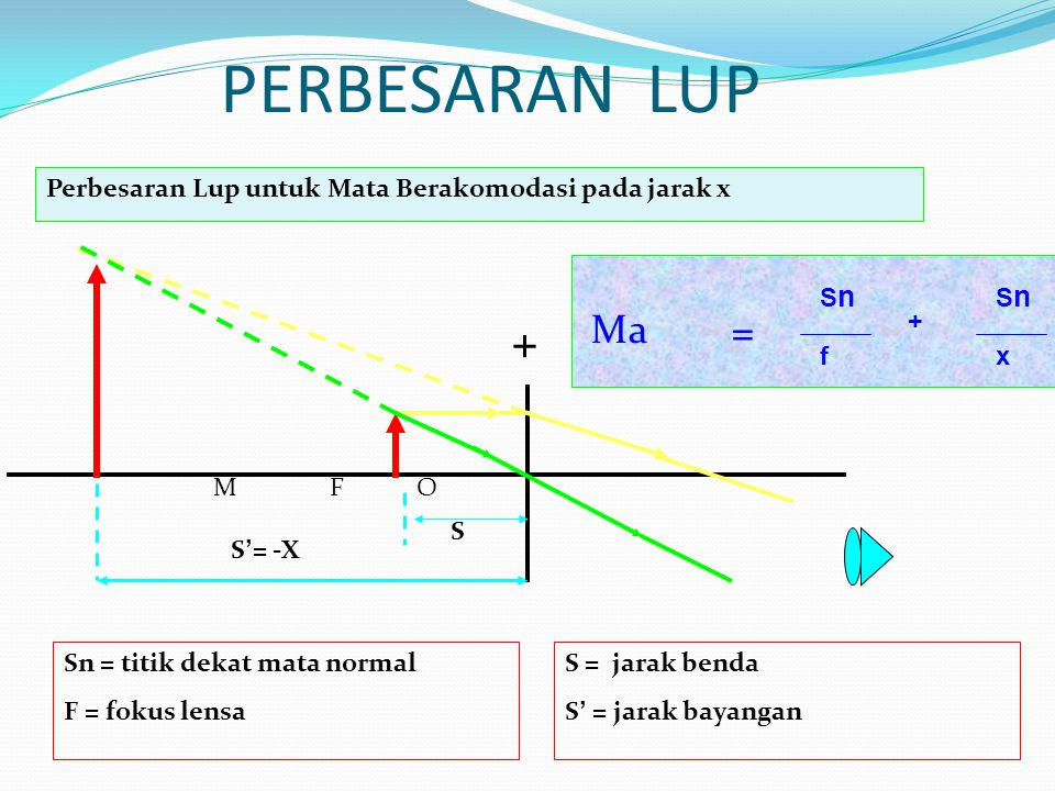 PERBESARAN LUP + M F O Perbesaran Lup untuk Mata Berakomodasi pada jarak x Ma S S ' = -X SnSn f + SnSn x = Sn = titik dekat mata normal F = fokus lensa S = jarak benda S ' = jarak bayangan