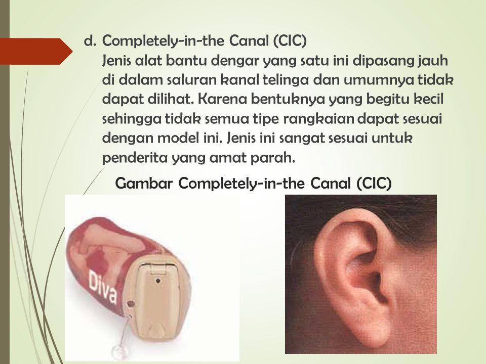 d. Completely-in-the Canal (CIC) Jenis alat bantu dengar yang satu ini dipasang jauh di dalam saluran kanal telinga dan umumnya tidak dapat dilihat. K