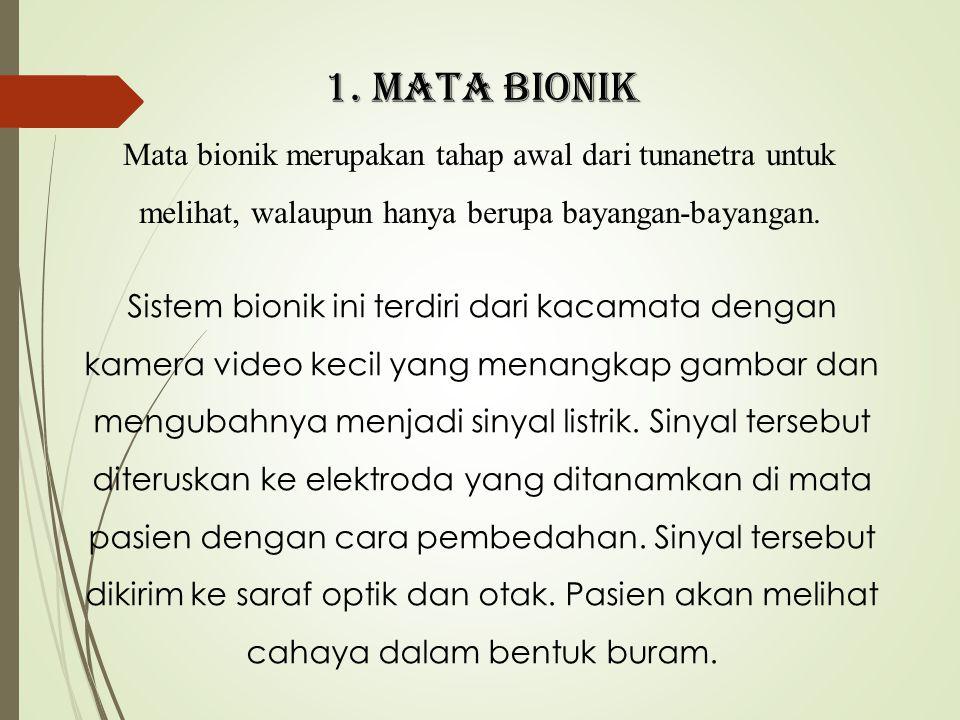1. MATA BIONIK Mata bionik merupakan tahap awal dari tunanetra untuk melihat, walaupun hanya berupa bayangan-bayangan. Sistem bionik ini terdiri dari