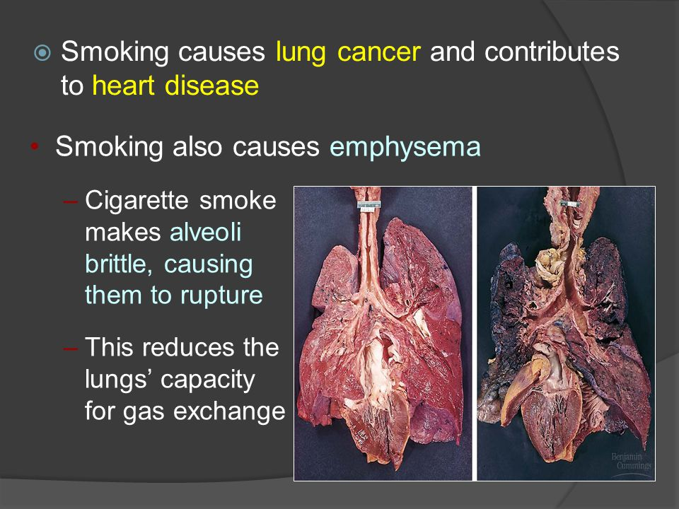  Smoking causes lung cancer and contributes to heart disease Smoking also causes emphysema –Cigarette smoke makes alveoli brittle, causing them to rupture –This reduces the lungs' capacity for gas exchange