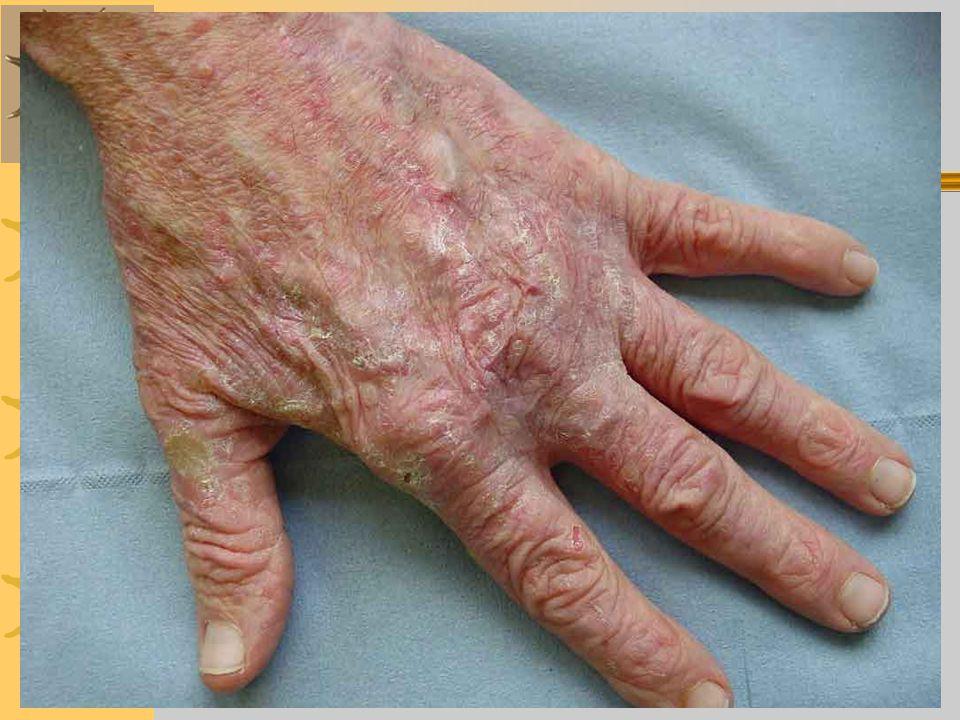 Diagnosa Keperawatan 1.Nyeri berhubngan dengan kompresi/destruksi jaringan saraf.