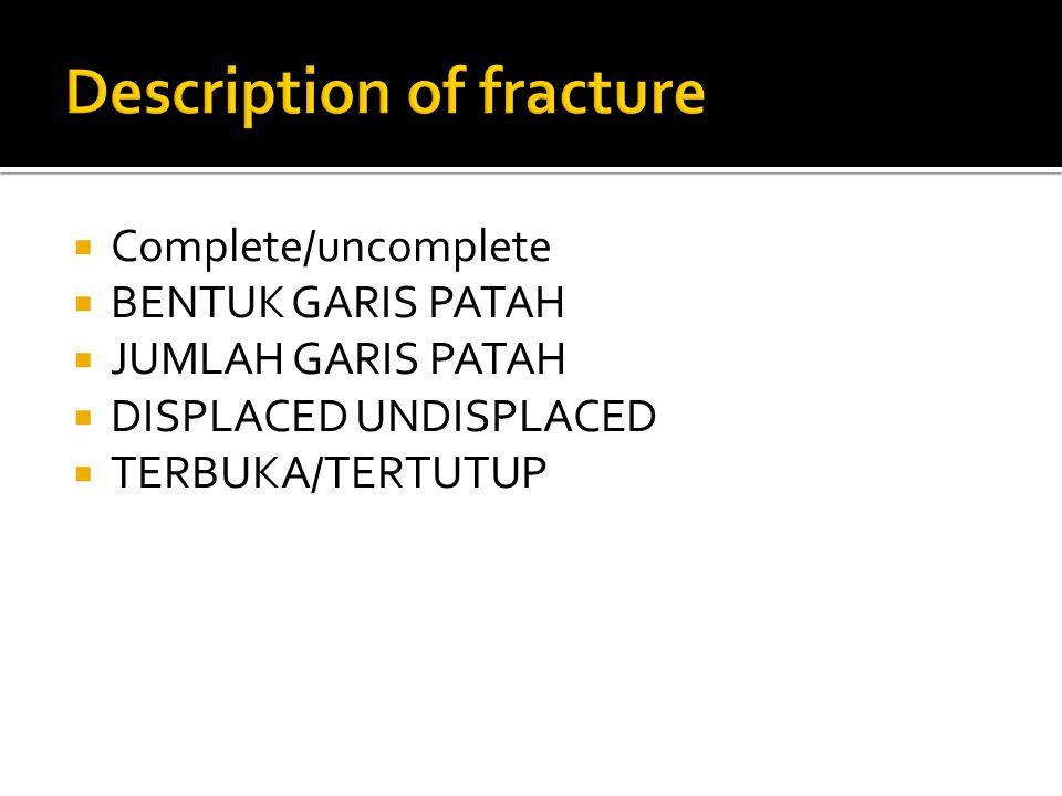  Complete/uncomplete  BENTUK GARIS PATAH  JUMLAH GARIS PATAH  DISPLACED UNDISPLACED  TERBUKA/TERTUTUP
